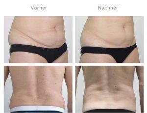 Vorher und Nachher Kryolipolyse-Behandlung